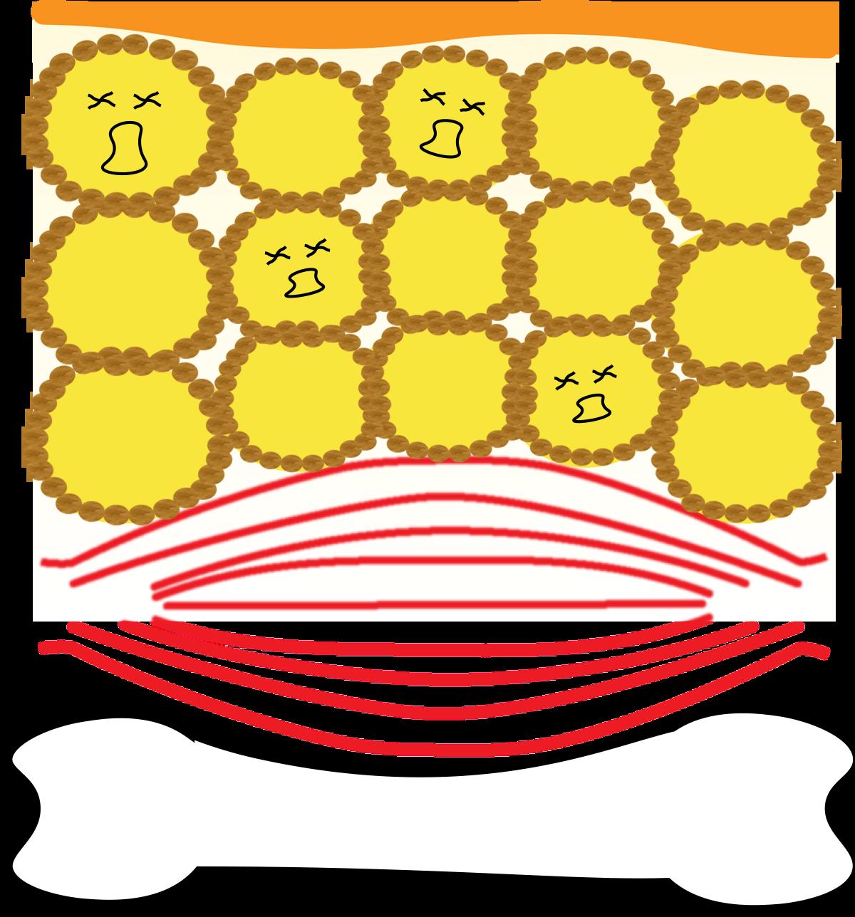 セルライトが出来る仕組み3の図
